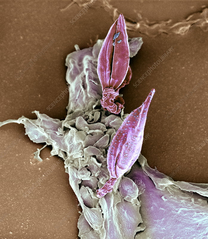Protozoan infecting macrophage, SEM
