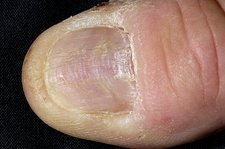 Thumbnail with lichen planus disease