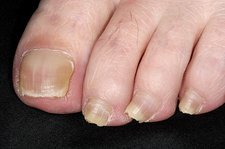 Toenails with lichen planus disease