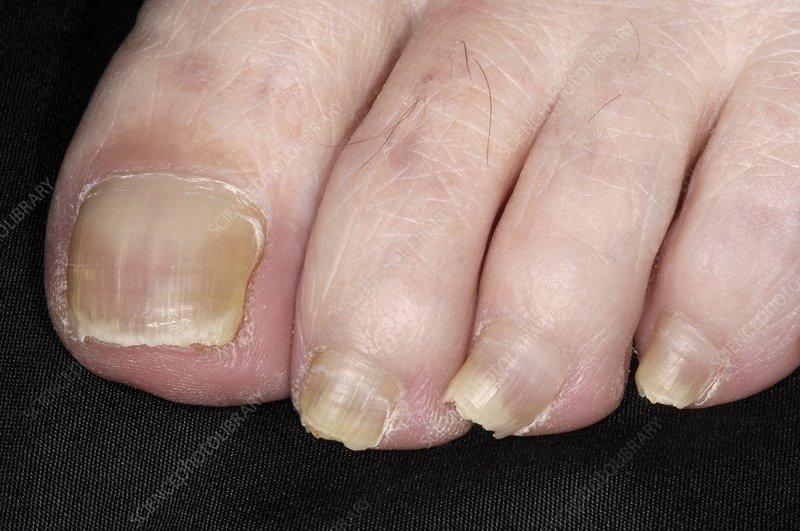 Toenails with lichen planus diseaseUnhealthy Toenails