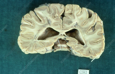 Section of whole brain affected by MS