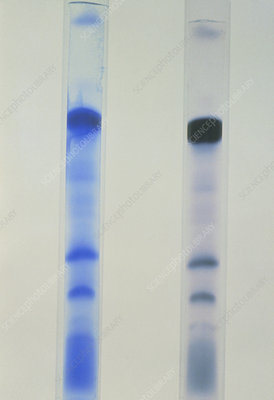 Electrophoresis test in multiple sclerosis