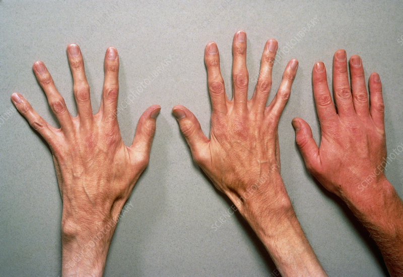Hands of a person suffering from Marfan's syndrome