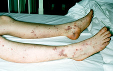 Patient legs with bacterial septiceamia