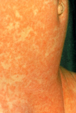 Infant girl covered with measles rash