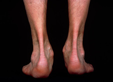 Neurological wasting of muscles in ankles