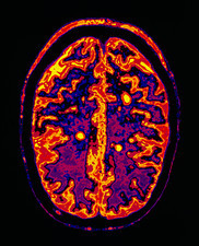 MRI scan of brain in multiple sclerosis (MS)