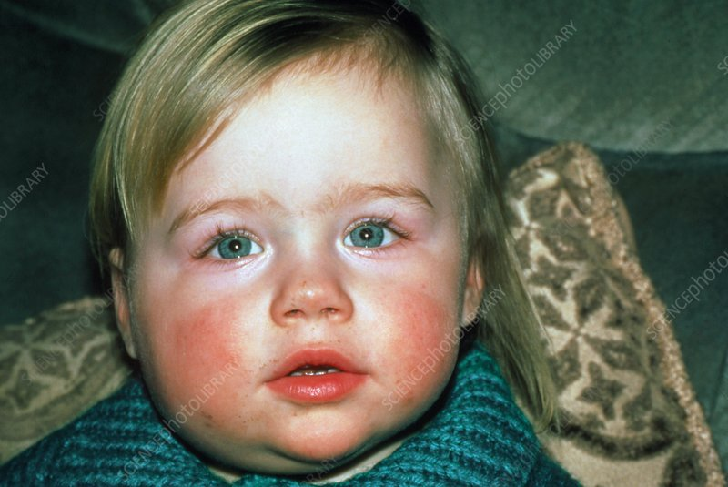 Two year old child affected by mumps
