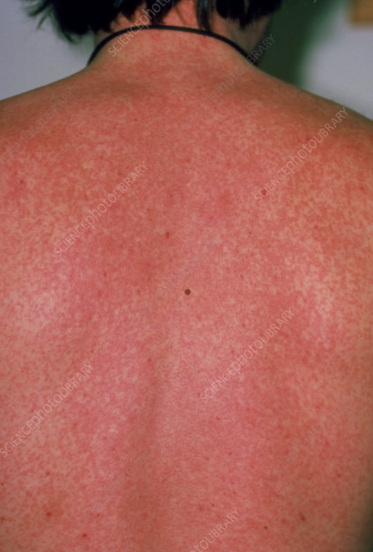 A severe measles rash on the back of a man