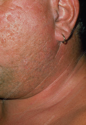 Swelling of glands in man with mumps.