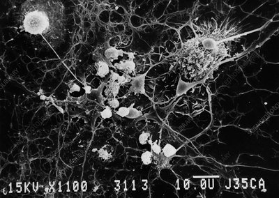 SEM of microglial cells ingesting oligodendrocytes