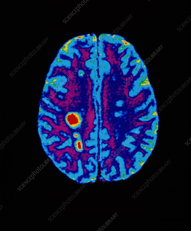 MRI scan of brain with multiple sclerosis