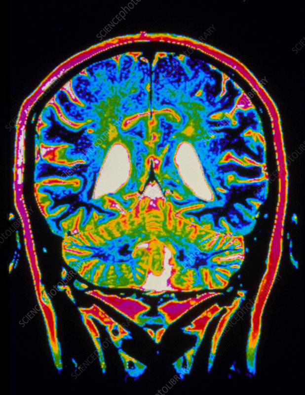 Colour MRI scan of a brain with multiple sclerosis