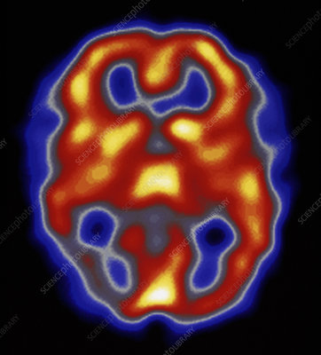 Colour SPECT scan of brain during migraine attack