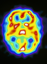 Brain during migraine, SPECT scan