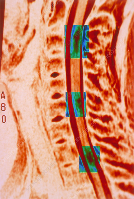 Mri Scan Of Multiple Sclerosis Plaques In The Neck Stock Image M210