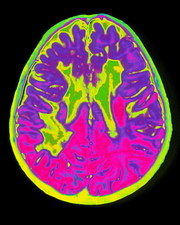 Coloured MRI brain scan showing multiple sclerosis