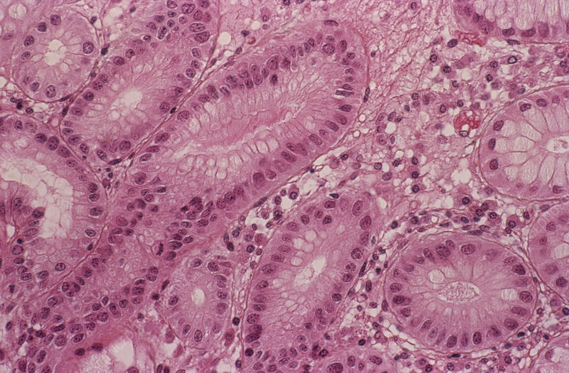 Stomach metaplasia
