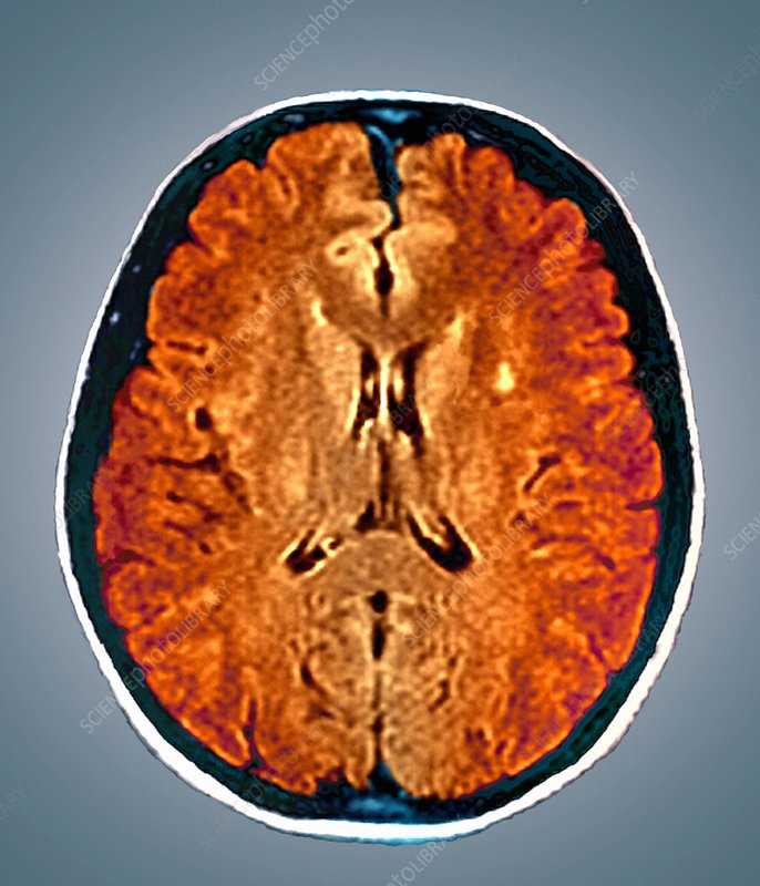 Multiple sclerosis, MRI brain scan