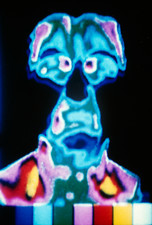 Before migraine, thermogram