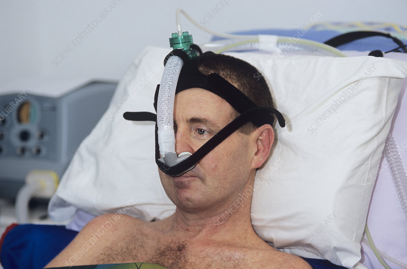 A patient using a ventilator system to help with breathing