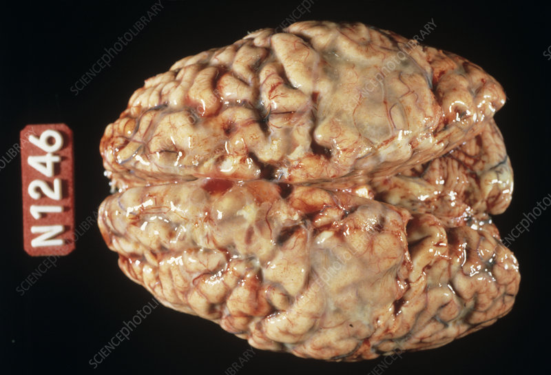 Brain with meningitis - Stock Image M210/0296 - Science ...