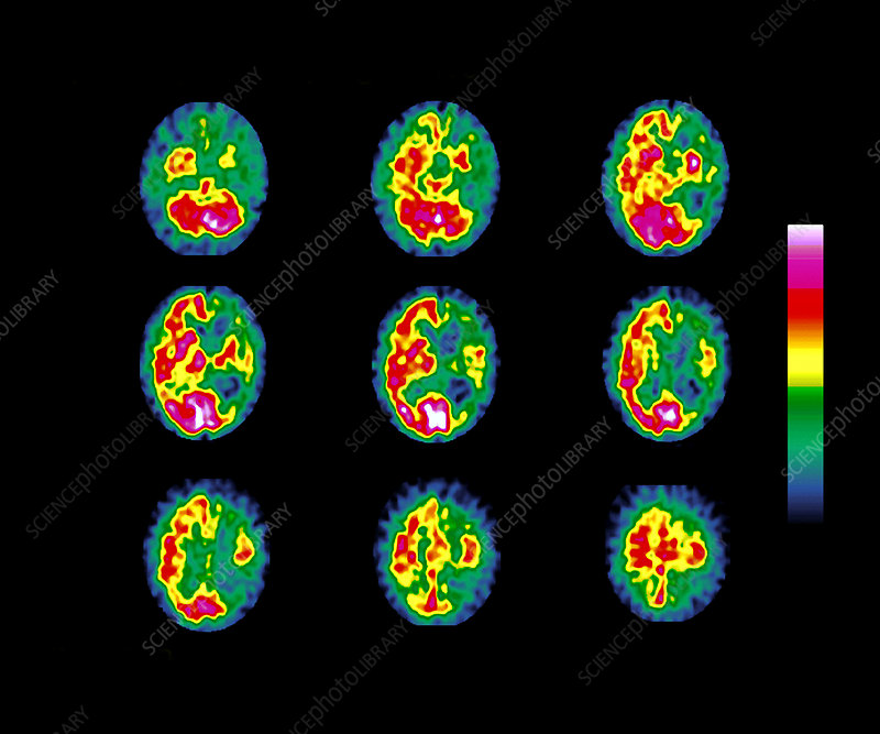 Mesulam's syndrome, SPECT brain scans