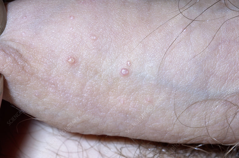 Molluscum contagiosum on the penis