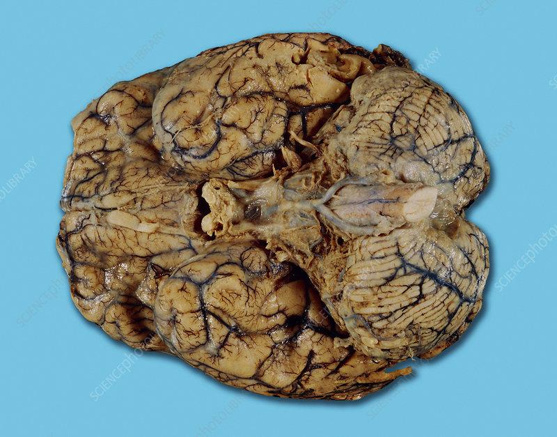 Brain with meningitis - Stock Image - M210/0371 - Science ...