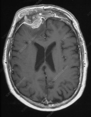 Mucocele growth, MRI scan
