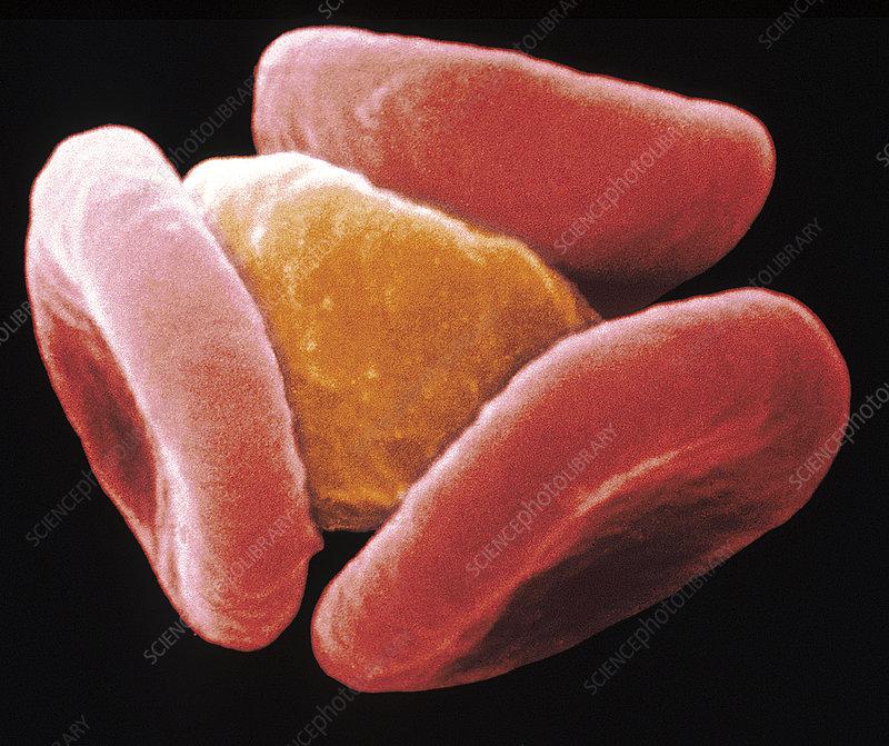 Image result for malaria sem