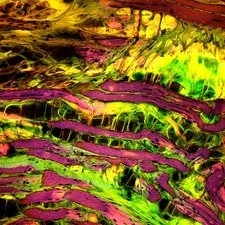 Muscular dystrophy, light micrograph