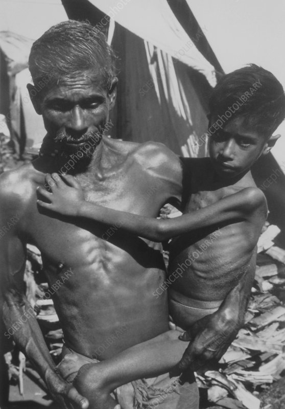 Malnourished Indian man carries his emaciated son