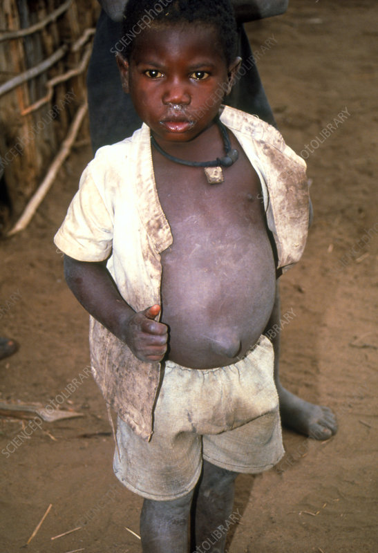 Malnourished young boy