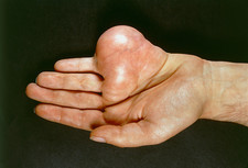Large neurofibroma on a man's hand