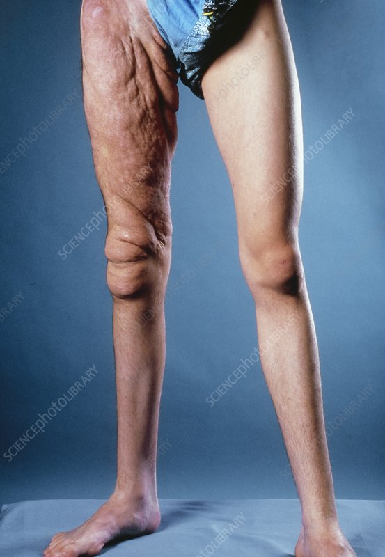 Man with neurofibromatosis affecting his thigh.