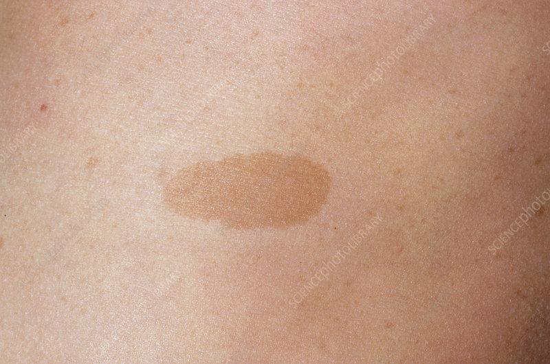 Cafe AU Lait Spots On Skin