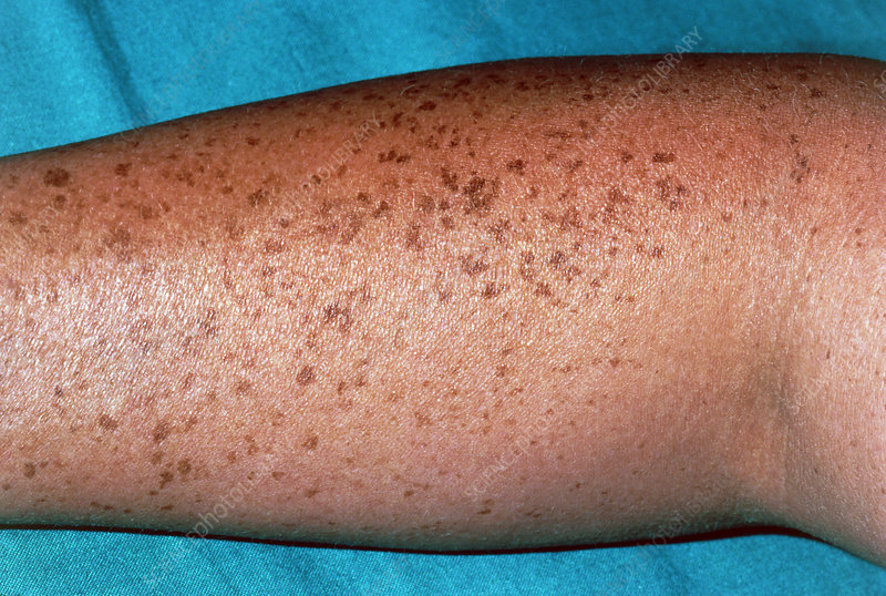Pigmented naevi (moles) on the arm of a patient