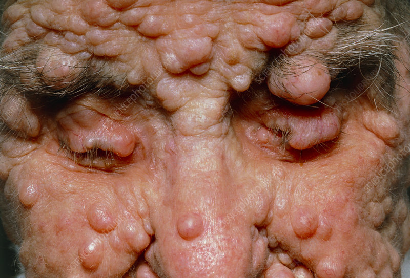 Woman's face with neurofibromatosis