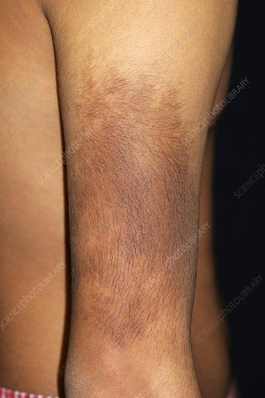 Large birthmark