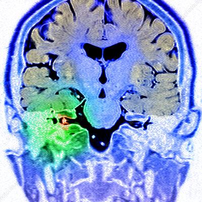 Acoustic neuroma, MRI scan