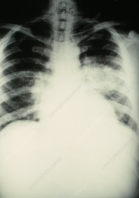 X-ray of lungs in pulmonary oedema