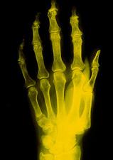 False col x-ray image of hand showing osteomalacia