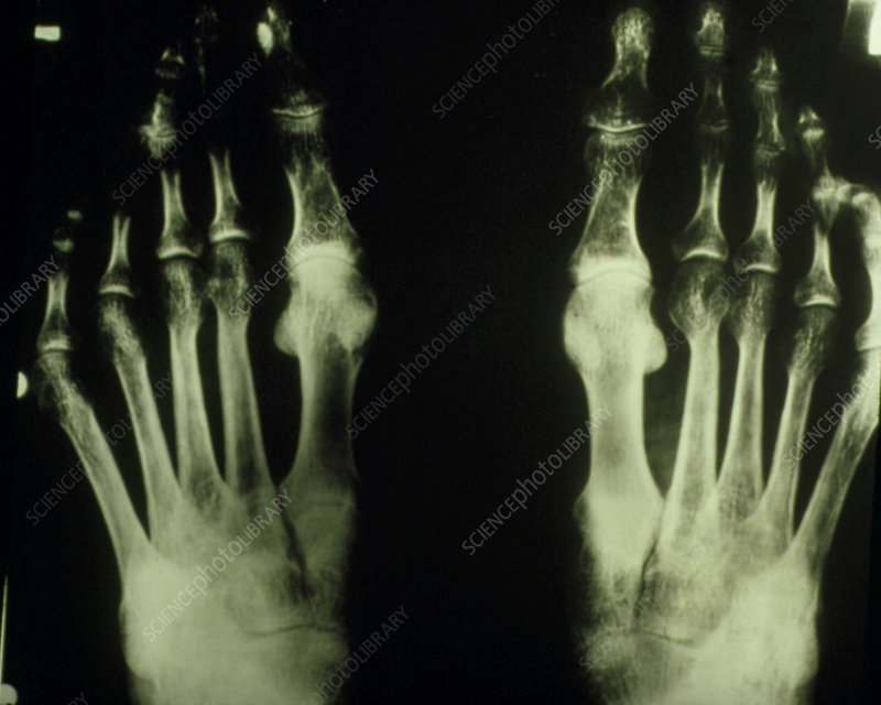 X-ray of feet of osteoporosis sufferer