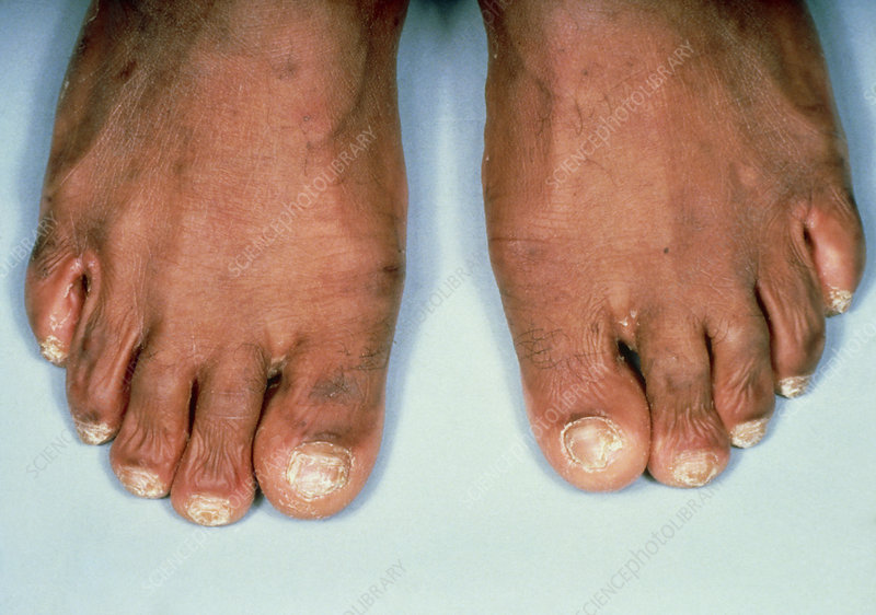Onychomycosis, a fungal infection of toes & nails