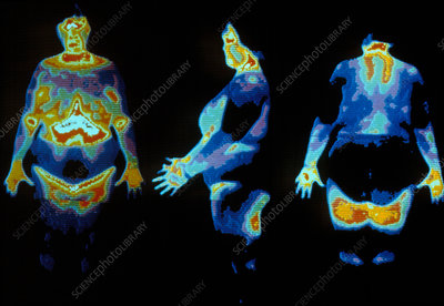 Three thermograms of an obese woman