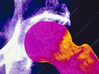 colour X-ray of upper femur with osteoporosis