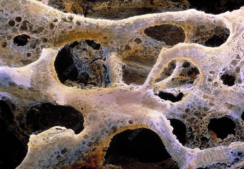 Osteoporotic bone, SEM