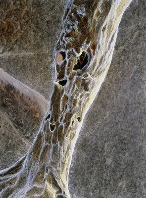 False-colour SEM of trabecula with osteoporosis