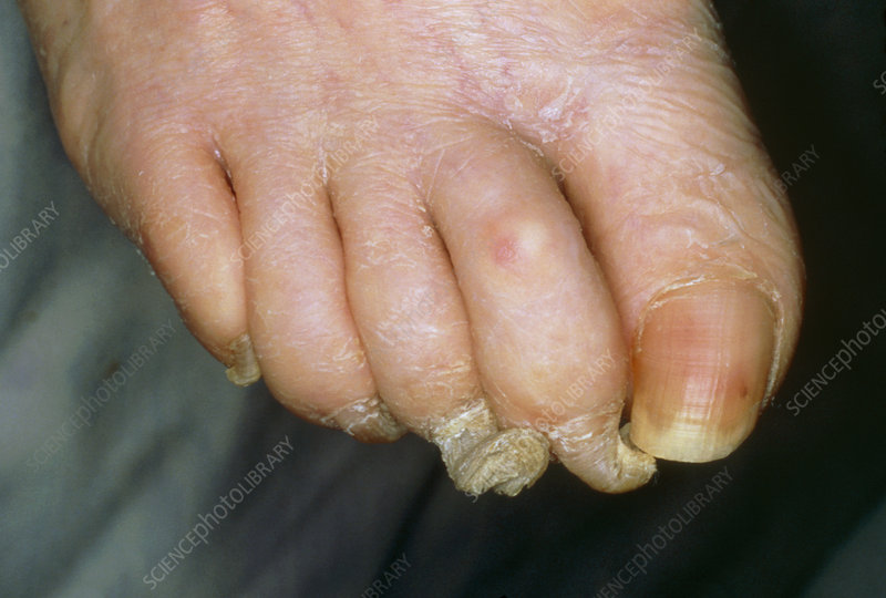 Toenails showing onychogryphosis